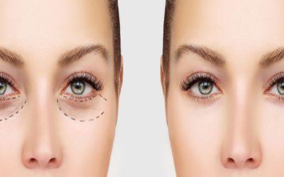 بلفاروپلاستییا جراحی زیبایی چشم