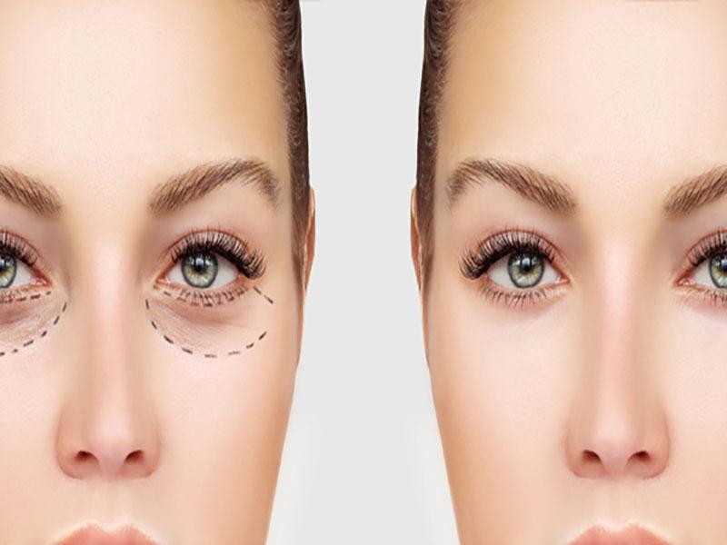 جراحی-زیبایی-چشم