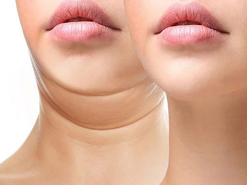 عمل لیپوماتیک غبغب و زیبایی چهره
